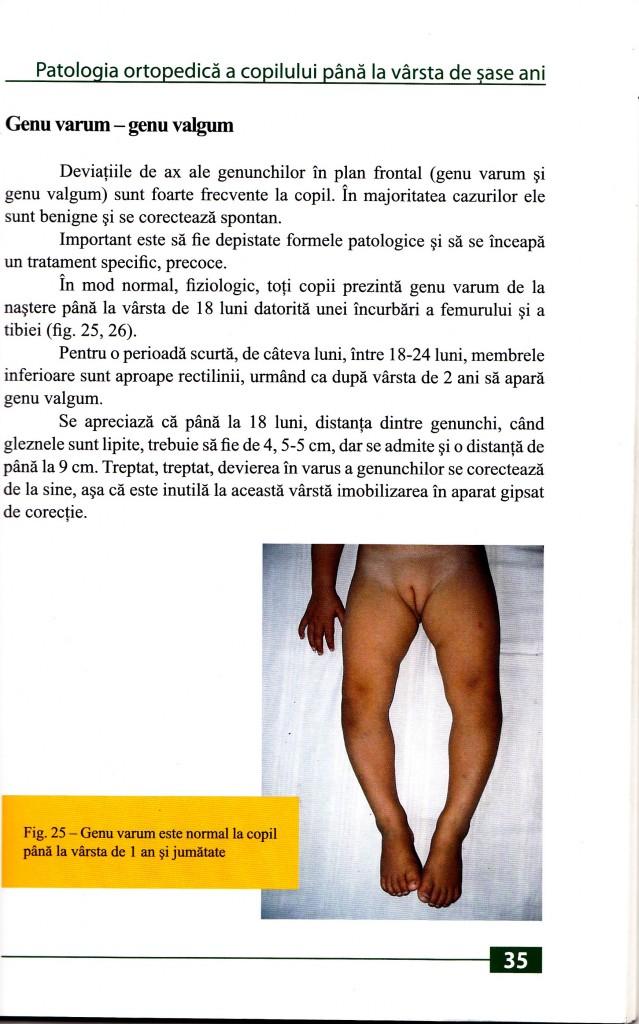 Genu varum este normal la copii pana la 18 luni.